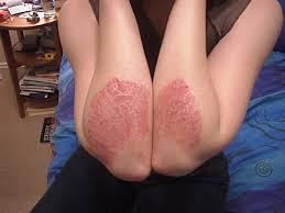 """La Psoriasis produce """"rechazo"""" social por la visibilidad de las lesiones, aunque no es contagiosa."""