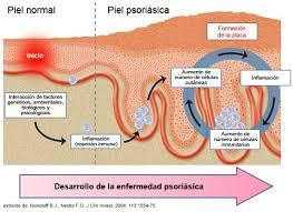 La Psoriasis y la Artritis Psoriasica son una enfermedad crónica de la piel. El diagnóstico precoz es fundamental.