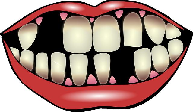caida_dientes