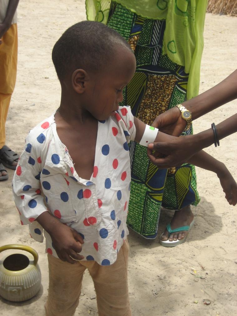 HKI-Child Health-Burkina Faso