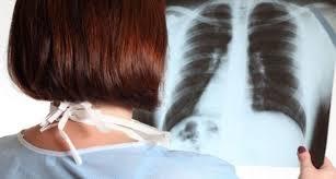 pulmon radiografía