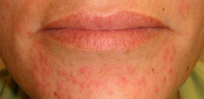 mujer dermatitis.3