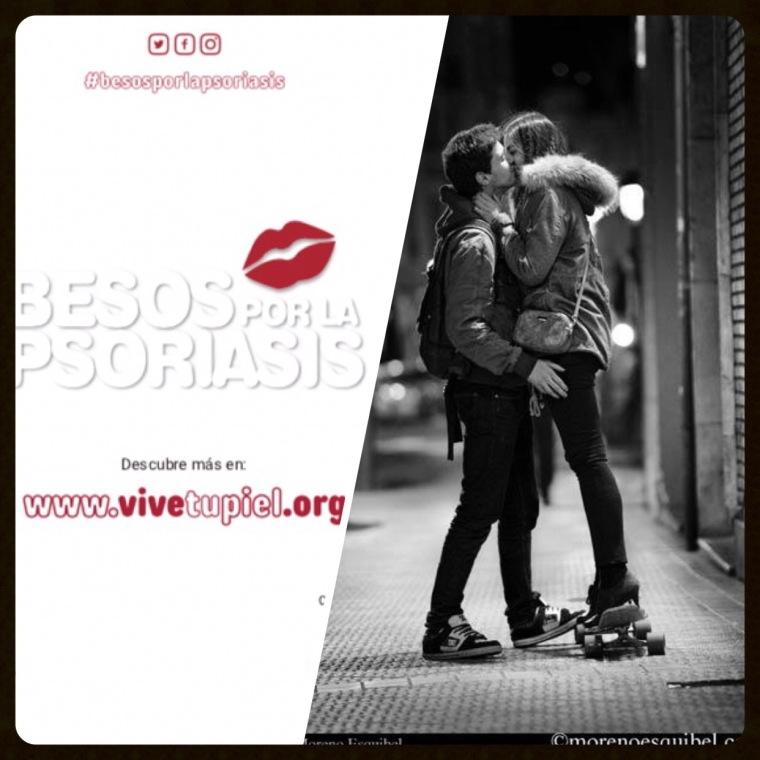 Besos por la Psoriasis