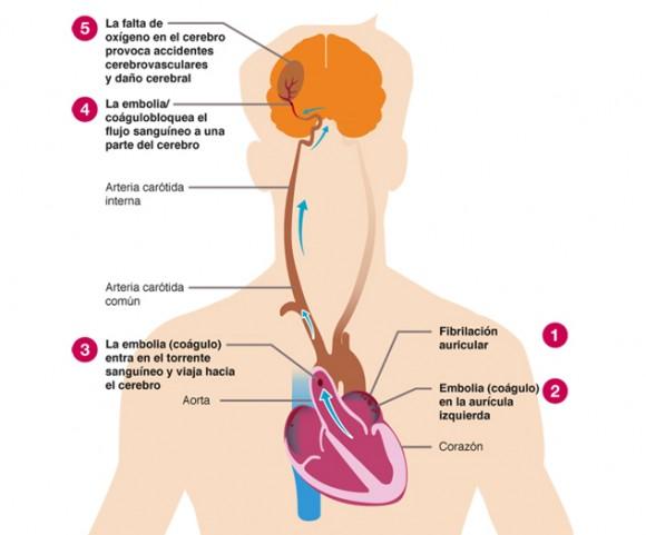 fibrilacion1