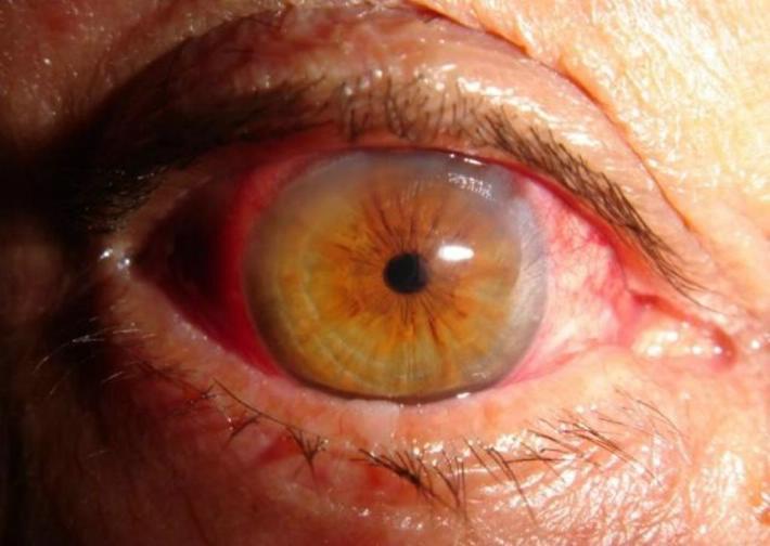 las-complicaciones-que-causa-la-diabetes-en-tus-ojos-3
