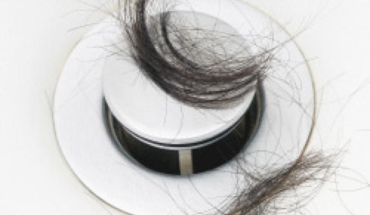 caida_cabello_alopecia_101