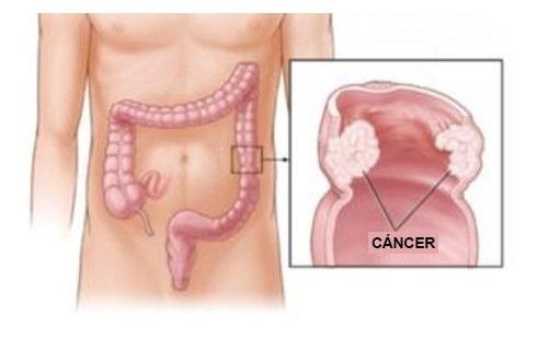 cancro-al-colon