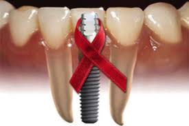 VIH en la boca signos de diabetes