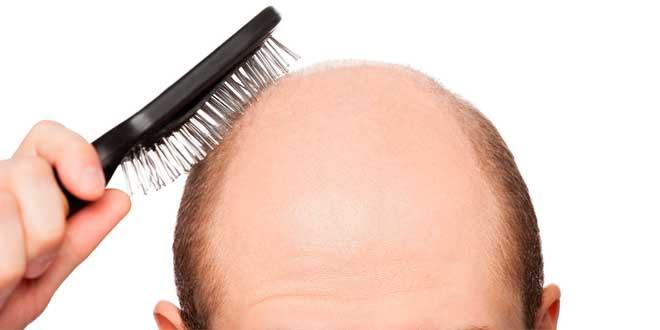 mitos-caida-cabello