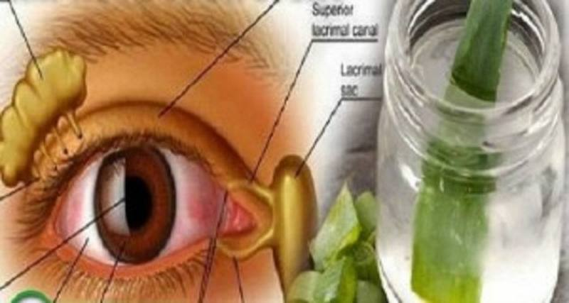 aloe-vera-para-mejorar-la-vision-1
