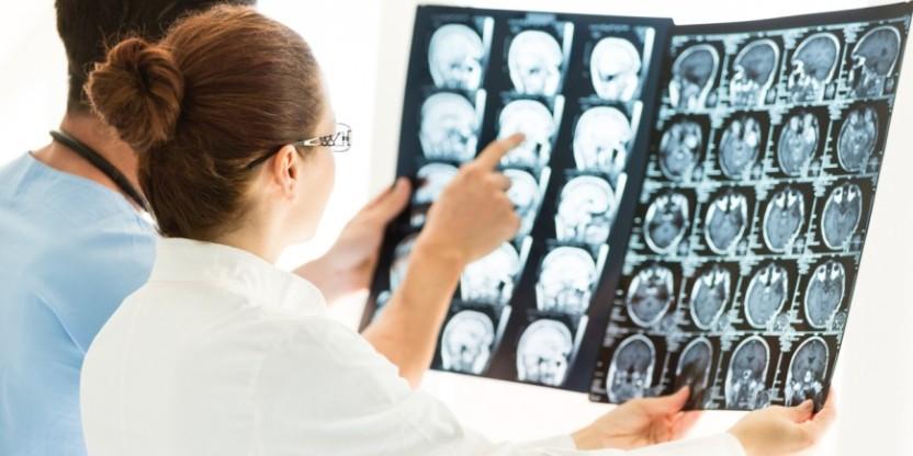 tumor-cabeza-cuello-870x43522