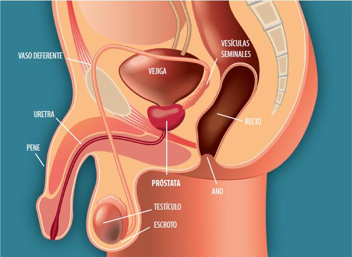 después de la tomoterapia de próstata, cuánto disminuye