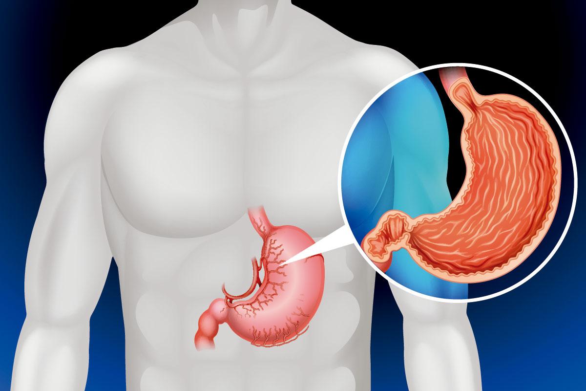 bacterias del estomago pylori sintomas de diabetes